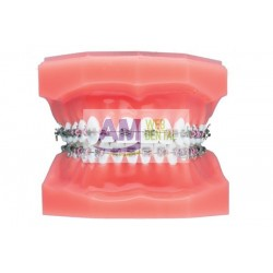 BRACKET METALICO ELITE ROTH .022 CON GANCHO MINI TWIN REPOSICION -- ORTHO ORGANIZERS
